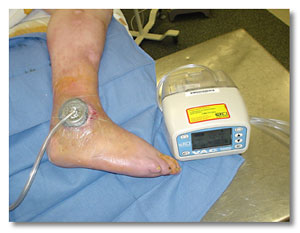 we offer wound vac therapy here s what that means connecticut